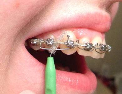 болит корень зуба брекеты