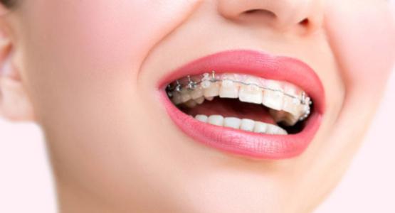 Сколько дней после установки брекетов болят зубы